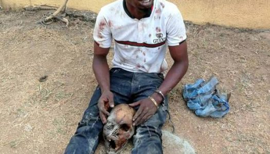 Two remanded in Ile-Ife for possession of human parts