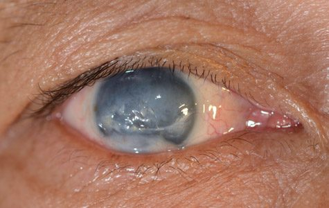 4.5m blindness worldwide caused by glaucoma